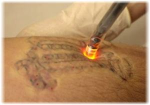 laser-tattoo-removal-photo